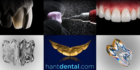 Online Dental Photography course by Szabi Hant MDT - 2 half-days