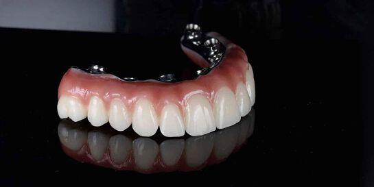 All on 4 Perth Dental Implant Seminar